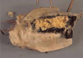 Bagworm (Thyridopteryx ephemeraeformis)